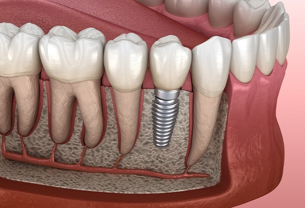 Animation of smile with implant supported replacement tooth