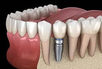 Animated implant supported replacement tooth