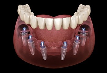Animated implant supported denture
